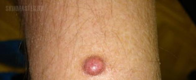røde læsioner på penis