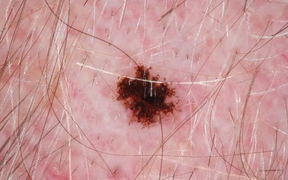 Коричневые пятна на теле: причины и лечение в домашних условиях. Коричневые пятна на теле: фото, причины, лечение.