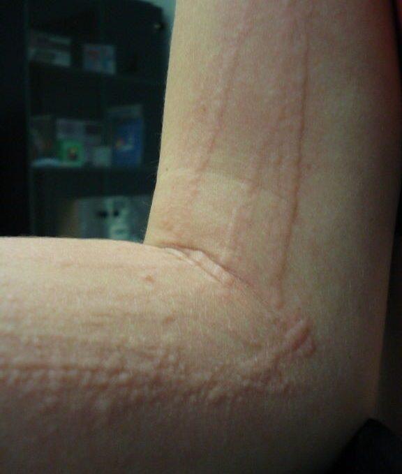 Полосы на коже после чесания