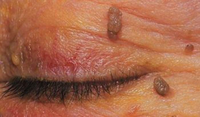 вирус папилломы человека у женщин в гинекологии 16 типа лечение