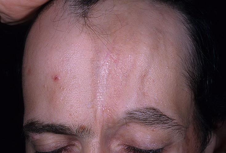 Лечение системной склеродермии народными средствами. Лечение склеродермии народными средствами