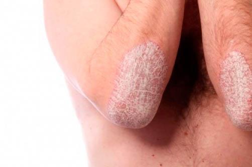 Болезнь кожи псориаз