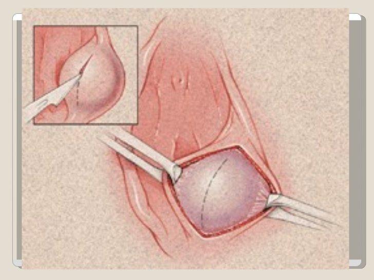 Закупорка сальных желез на половых губах
