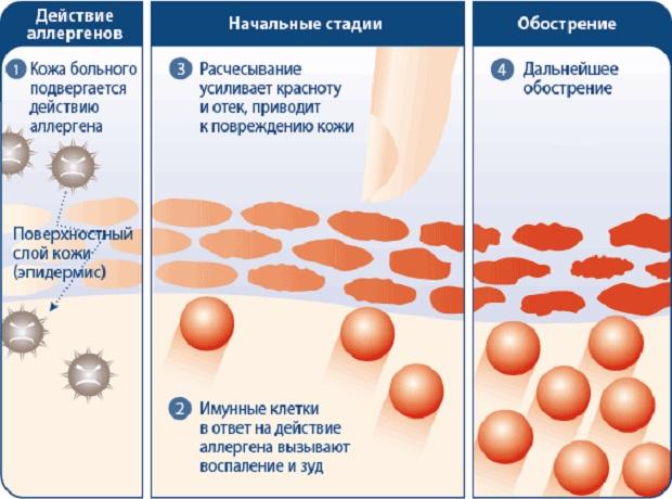 мазь при кожных заболеваниях на руках